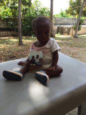 july-2015-malnourished-twin